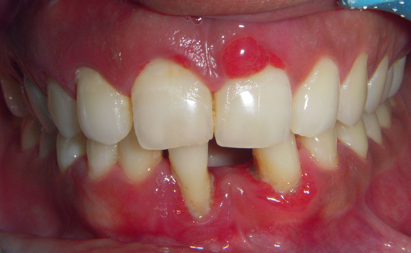 pics for gt periodontal abscess